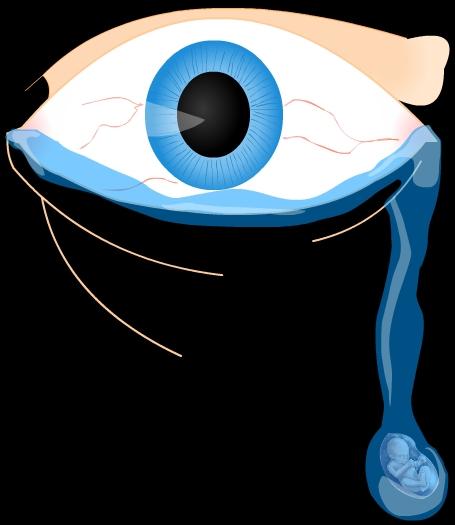 Unforgiving eye