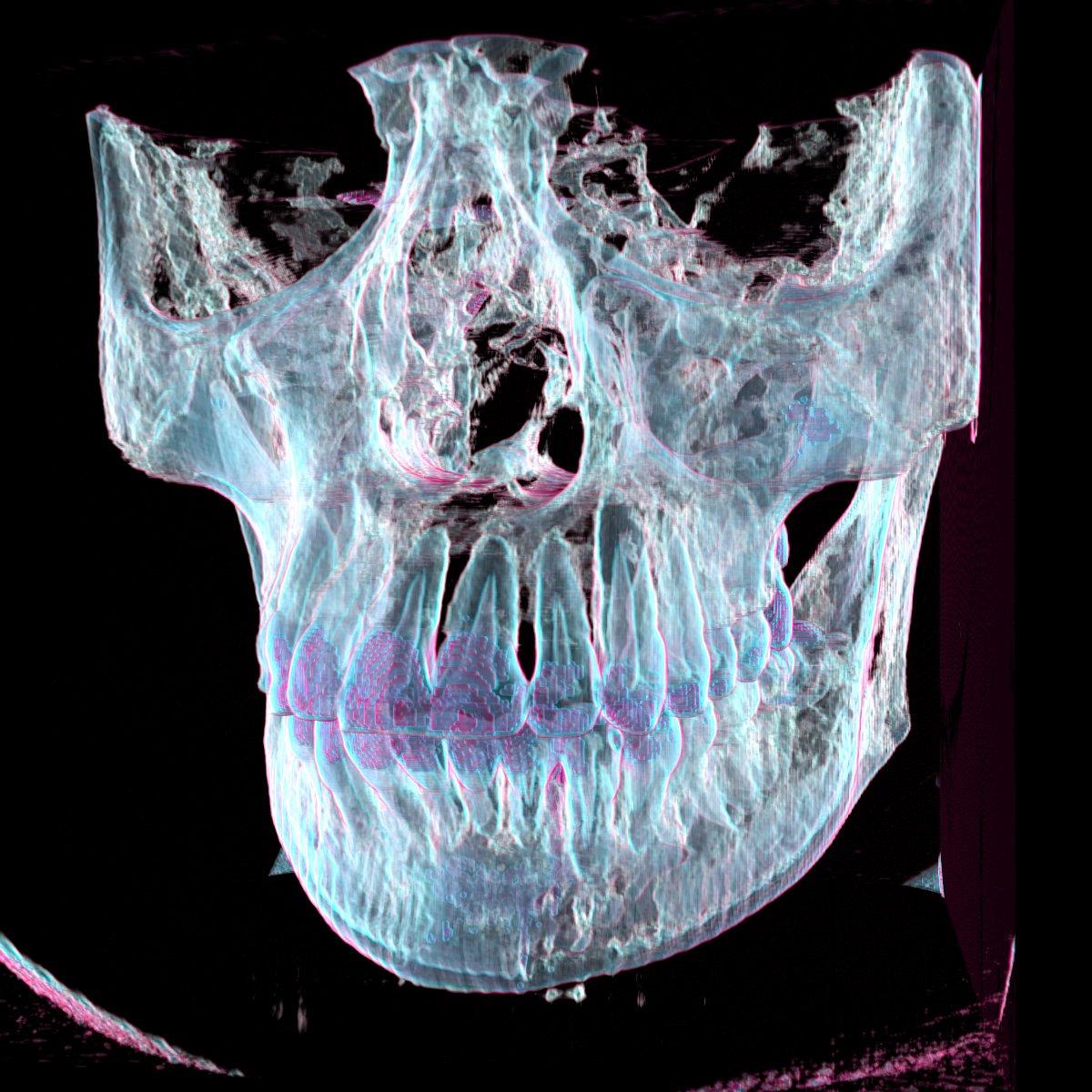 Isosurface Skull
