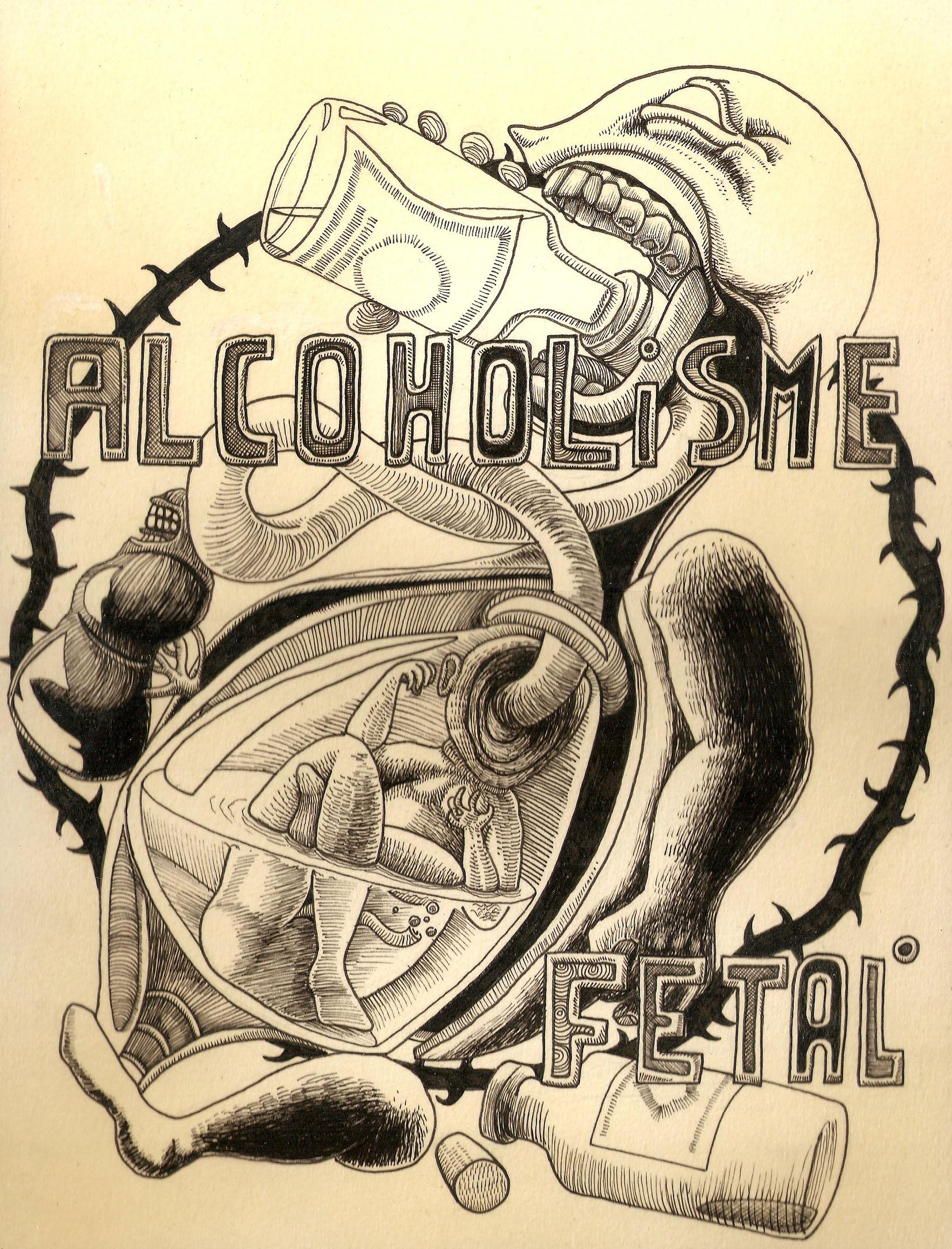 Alcoholisme Fetal