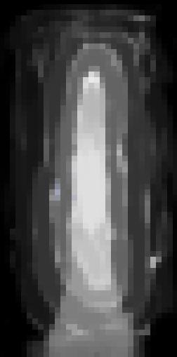 Reverse void