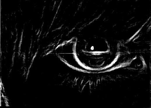 DJRandomiize's Eye