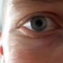 eye by blochead