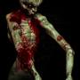 hurt zombie version2 by milkysquid
