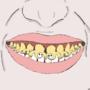 Fall Guys, except as teeth.