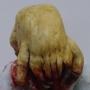 Headcrab Zombie