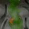 Green monster girl