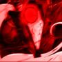 Red Rage by Zeurel