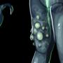 Nuke Zombie